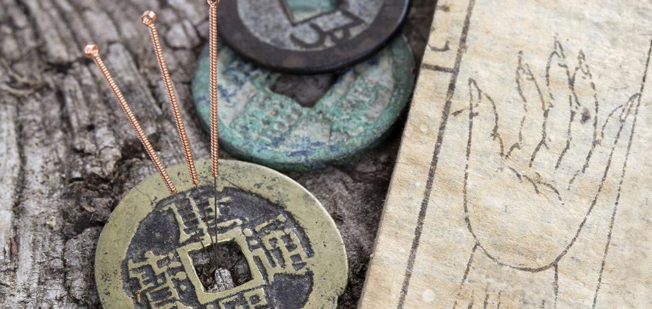Akupunkturens historie igennem 3000 år
