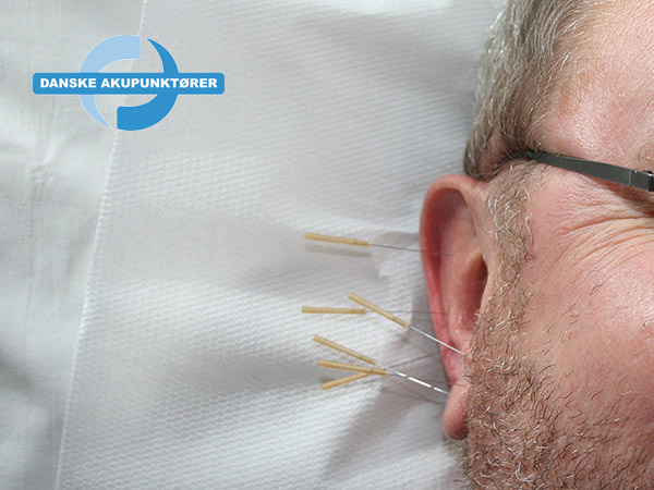 Akupunktur terapibehandling i Horsens - Danske Akupunktører